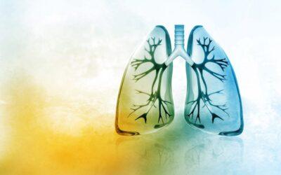 Diagnostyka i leczenie chorych na raka płuca